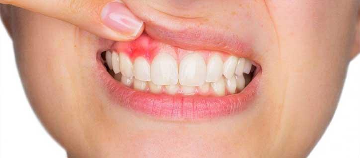 Parodontite salerno